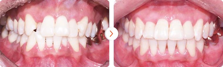 Bảng giá chi phí niềng răng chỉnh nha