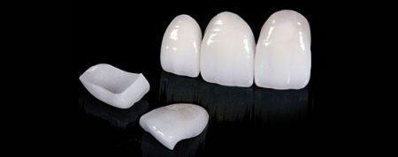 bọc răng sứ loại nào tốt nhất
