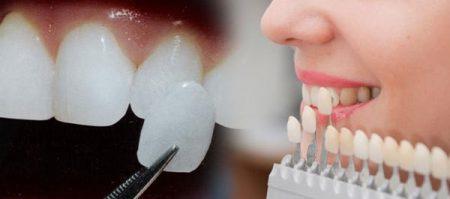 bọc răng sứ toàn sứ cercon