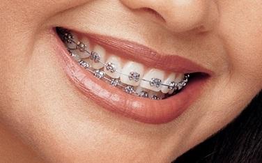 các loại niềng răng mắc cài hiện nay