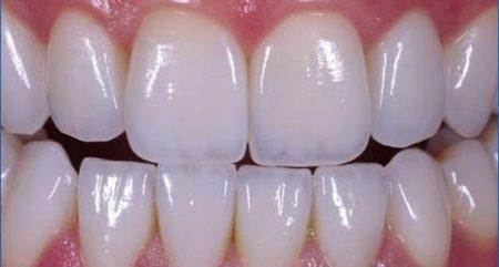 các loại răng sứ thẩm mỹ
