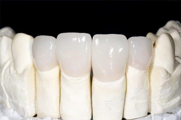 bọc răng sứ an toàn và hiệu quả