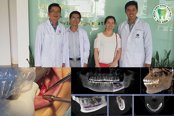 Chi phí cấy ghép Implant hiện nay