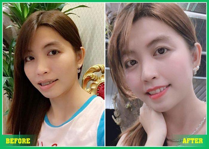 chi-phi-nieng-rang-chinh-nha-1
