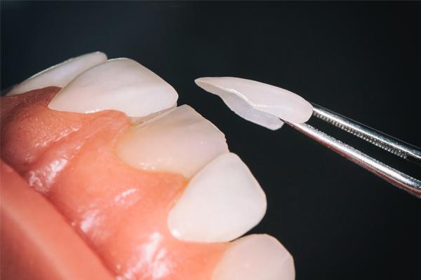 Răng sứ Veneer là gì?