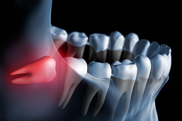 dấu hiệu và triêu chứng mọc răng khôn