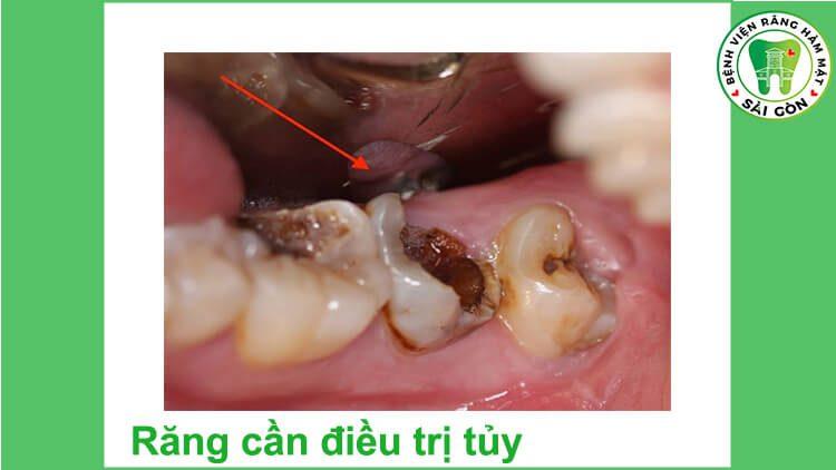 Chữa tủy răng là gì