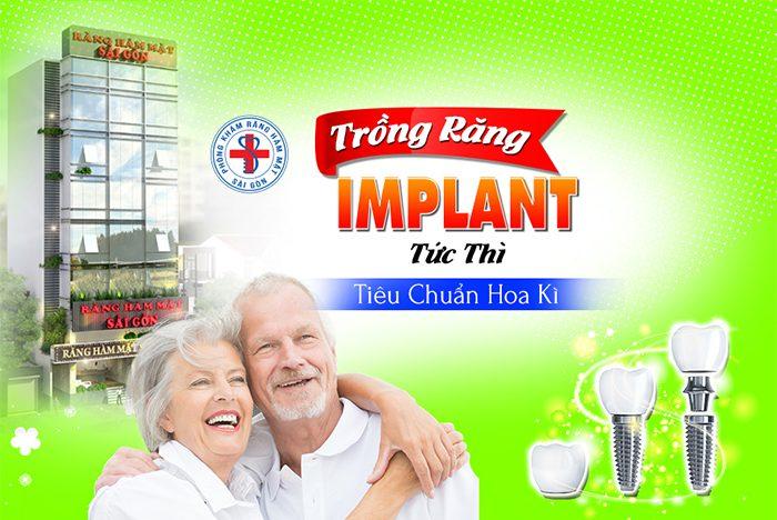 implant-5