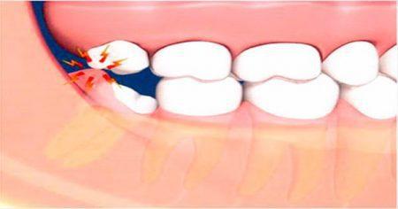 nhổ răng khôn an toàn