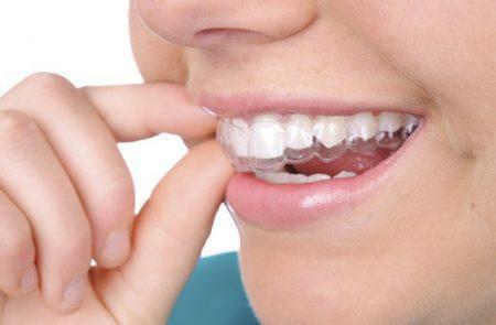 niềng răng có cần phải nhổ răng không