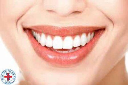 niềng răng mắc cài sứ tự đóng