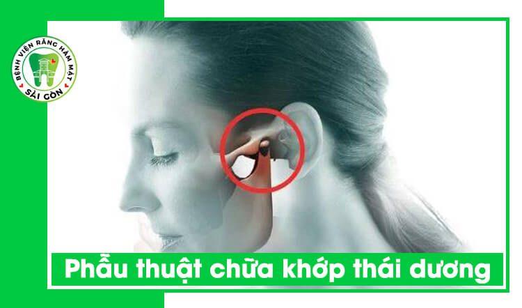 chữa khớp thái dương hàm