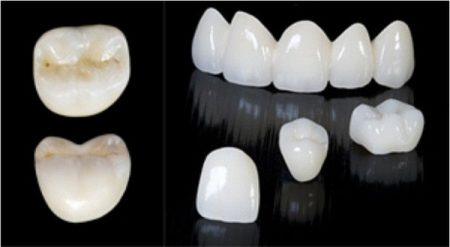răng sứ veneer là gì