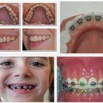 Tiêu chí chọn bác sĩ niềng răng