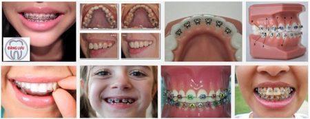 Tiêu chí đánh giá bác sĩ niềng răng tốt