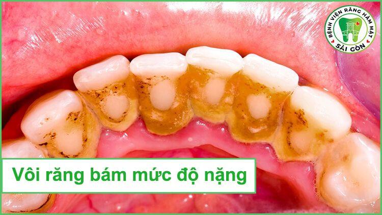 cạo vôi răng siêu âm