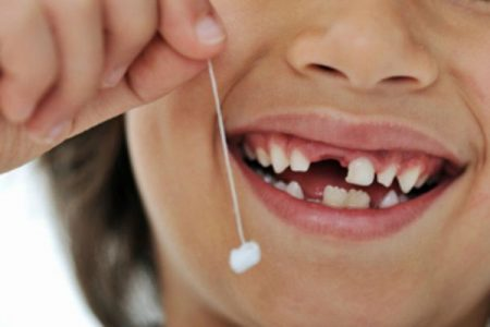 Có nên nhổ răng sữa không