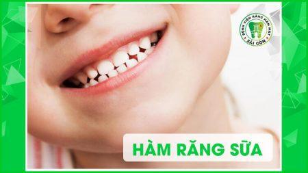 hàm răng sữa của trẻ