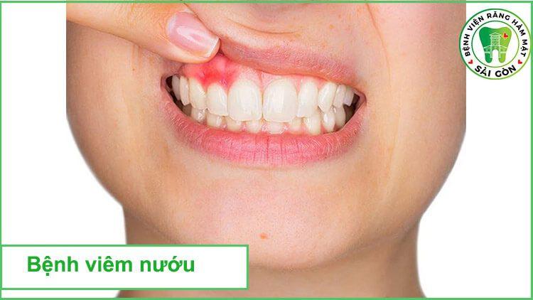 bệnh viêm răng dẫn đến chảy máu