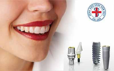Lợi ích của việc cấy ghép răng implant