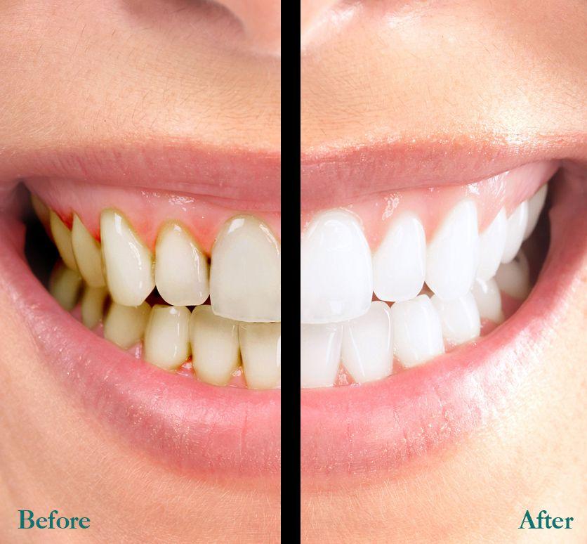 Tẩy trắng răng thẩm mỹ an toàn hiệu quả