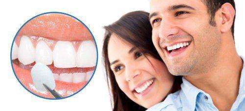 Ưu điểm của bọc răng sứ veneer