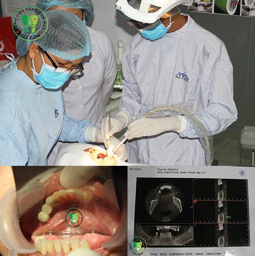 cham-soc-rang-sau-khi-cay-implant-1