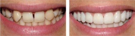 Bọc răng sứ cho răng cửa được thực hiện như thế nào?