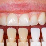 Bọc răng sứ có tác hại gì không?