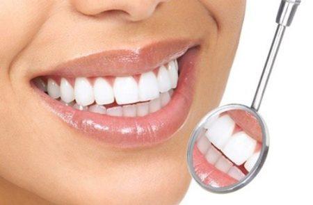 Bọc răng thẩm mỹ