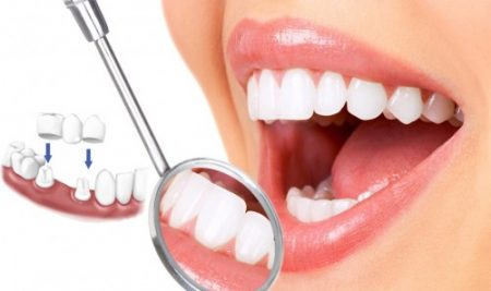 Bọc răng sứ thẩm mỹ giá bao nhiêu?