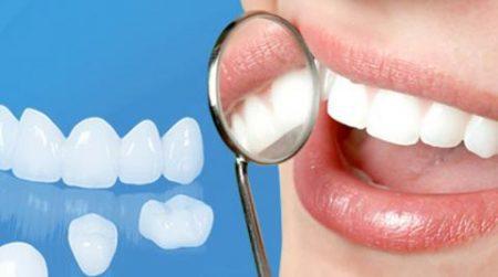 Bọc răng sứ ở đâu tốt nhất tại TPHCM