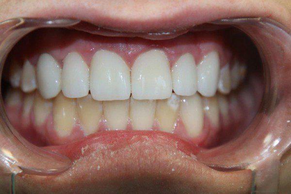 bọc sứ răng cửa
