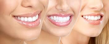 Cách tẩy trắng răng hiệu quả là gì?