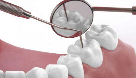 Cạo vôi răng có lợi hay hại