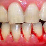Bạn muốn biết chảy máu chân răng là bệnh gì?