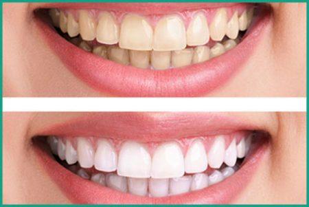 Chi phí tẩy trắng răng