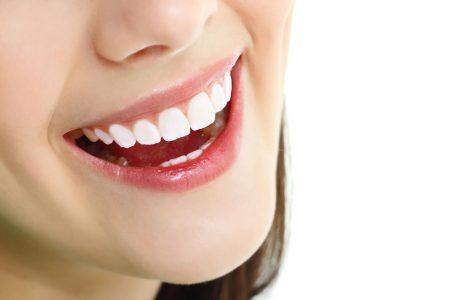 Có nên bọc răng sứ không ?