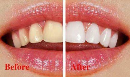 Có nên tẩy trắng răng hay không
