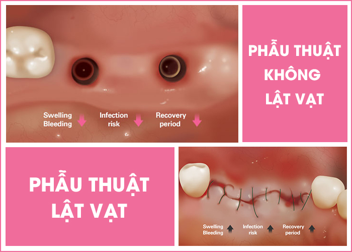 Cong-nghe-implant-ky-thuat-so