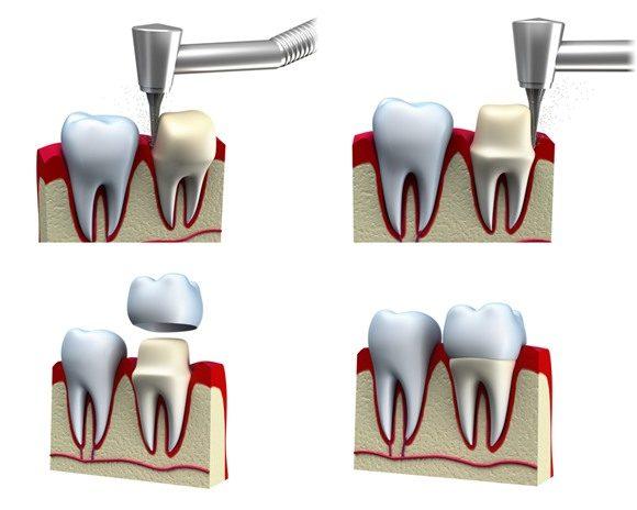 Mài răng bọc sứ có đau không?