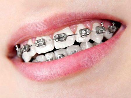 niềng răng hô giá bao nhiêu tiền?