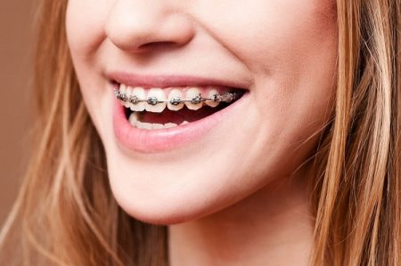 Niềng răng hô hàm trên hiệu quả như ý