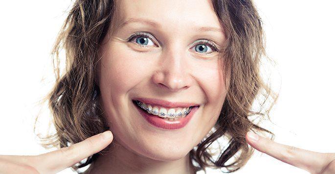 Niềng răng cho người trưởng thành hiệu quả