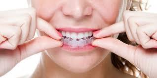 niềng răng trong suốt bao nhiêu tiền?
