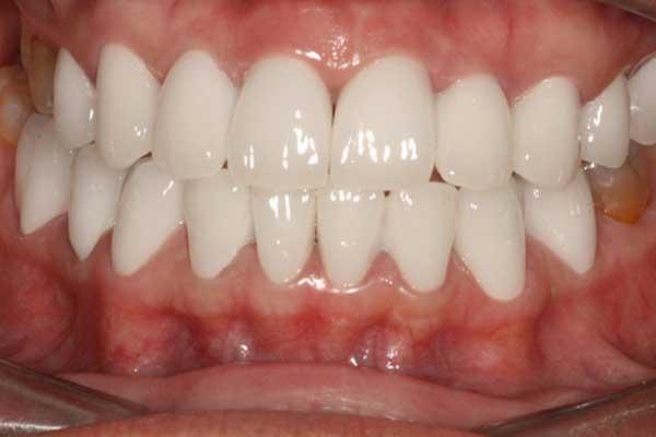 Quy trình bọc răng sứ thẩm mỹ như thế nào