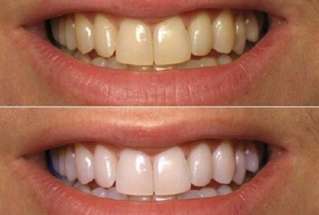 Răng vàng có tẩy trắng được không?