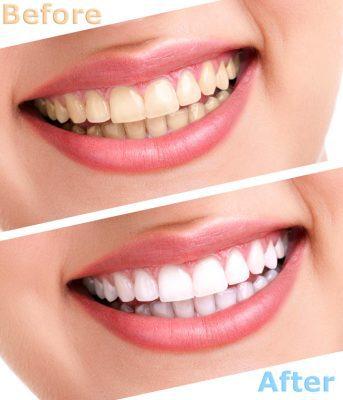 Tẩy trắng răng bằng đèn plasma như thế nào?