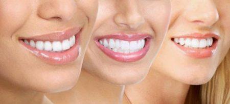 Tẩy trắng răng bằng phương pháp nào tốt nhất