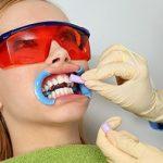 Tẩy trắng răng có hại hay không?